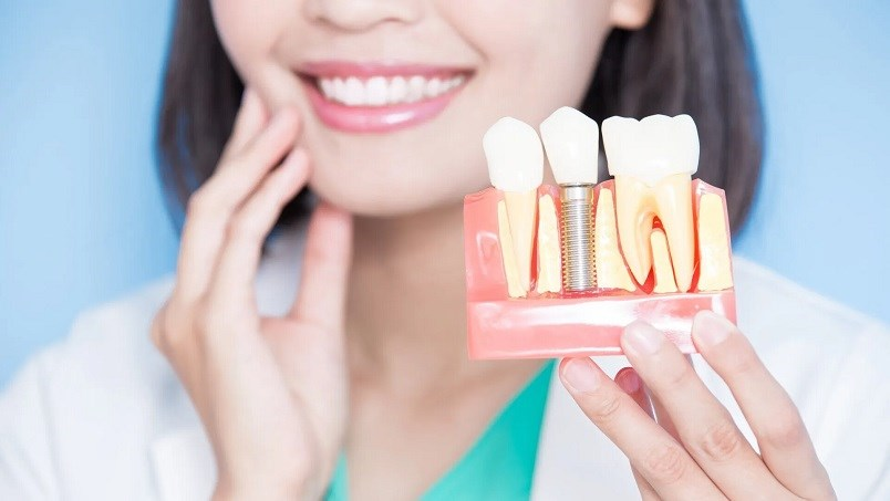 5 Most Commonly Asked Questions About Dental Implants